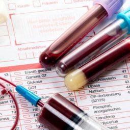 Вирус гепатита б количественный анализ расшифровка