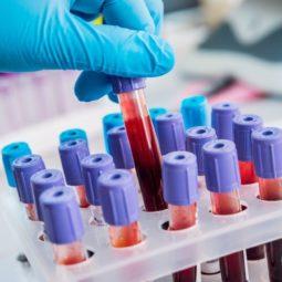 Гепатит с анализы