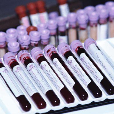Анализ количественный гепатит С