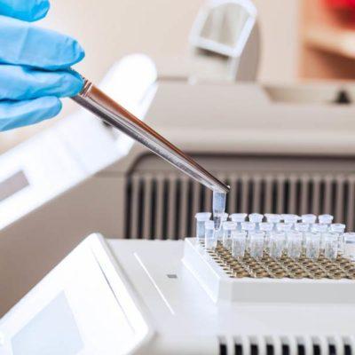 Анализ на генотип гепатита С