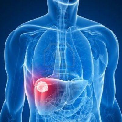 Симптомы острого гепатита С