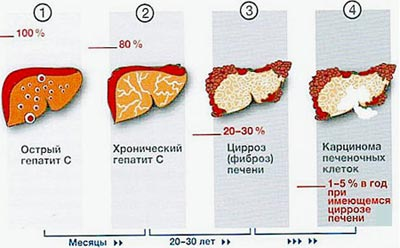 Разновидности гепатита С
