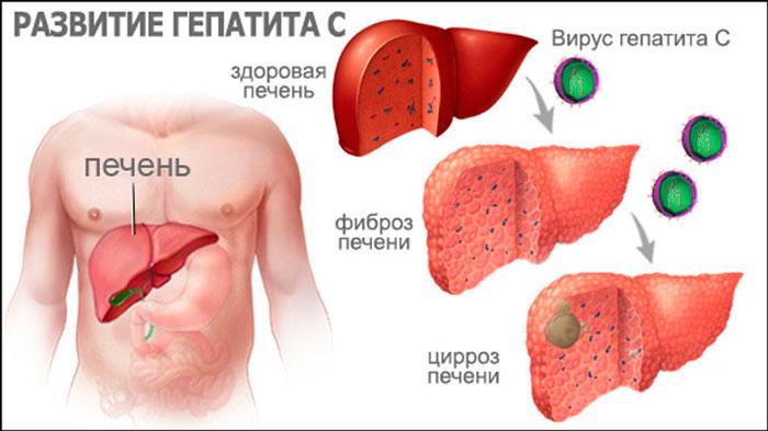 Развитие заболевания